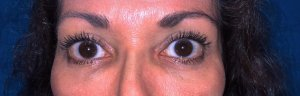 Manhattan BLEPHAROPLASTY after 6